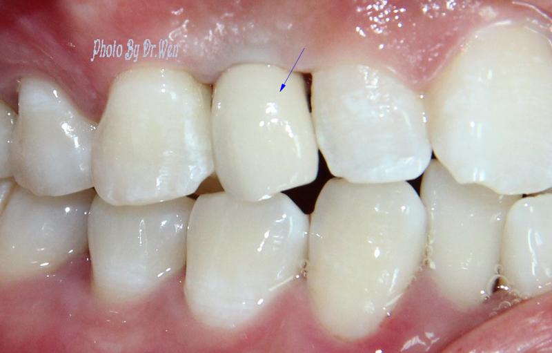 佛山种植牙 修复种植 烤瓷牙 镶牙 补牙 佛山市口腔医院 修复种植中心 5戴牙后即刻a.jpg